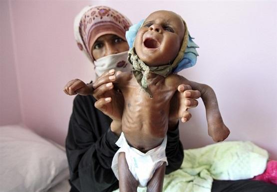 یونیسف: یکمیلیون و ۸۰۰ هزار کودک یمنی از سوءتغذیه شدید رنج میبرند